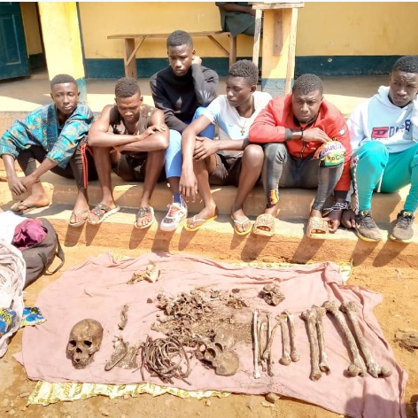 Meiganga : Des lycéens âgés entre 12 et 22 ans arrêtés pour trafic d'ossements humains